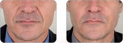 Korrigering av dype rynker rundt munnen med kombinasjon av TEOSYAL Ultra Deep & Global Action.