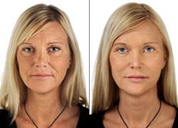 Kombinasjon behandling av ansikt rynkler med TEOSYAL. Bemerke deg forandring i rynker på pannen, rundt øynene og rundt munnen.