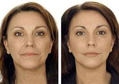 Kombinasjon behandling av ansikt rynkler med TEOSYAL. Bemerk deg forandring i rynker rundt øynene, kinn, øvre og nedre lepper.