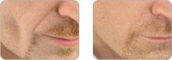 Behandling av deep ansikt rynkler med TEOSYAL Ultra Deep.